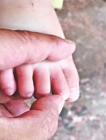 2岁半幼儿被毒蛇咬伤 警车狂奔40公里为生命接力